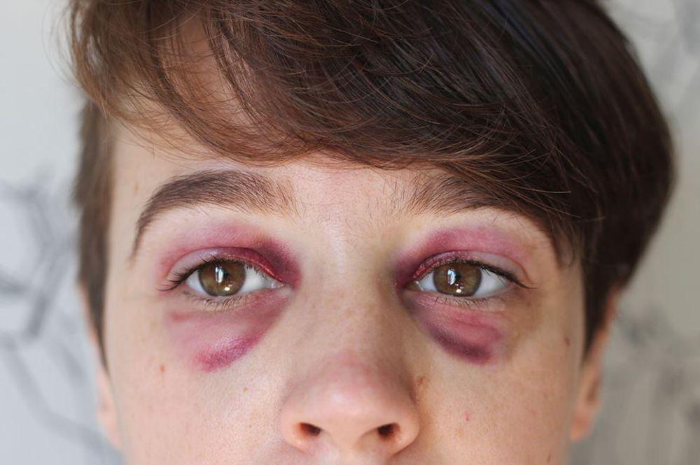 Molestie sul lavoro e violenza – prevenzione e contrasto