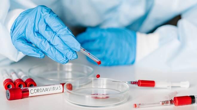 Test Sierologici – Regione ha confermato la propria inadeguatezza